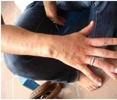 imagen 1 desinfeccioneshalonso